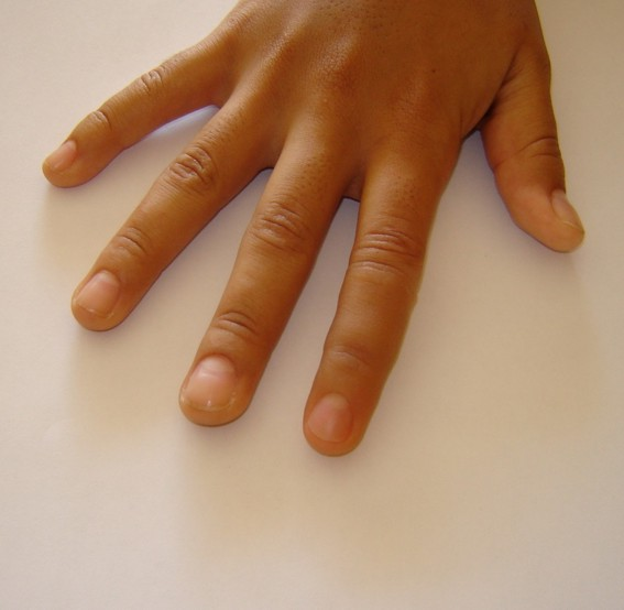 index finger prosthesis