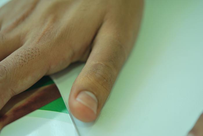 Famoso Dedos Deformados De Morderse Las Uñas Colección - Ideas Para ...