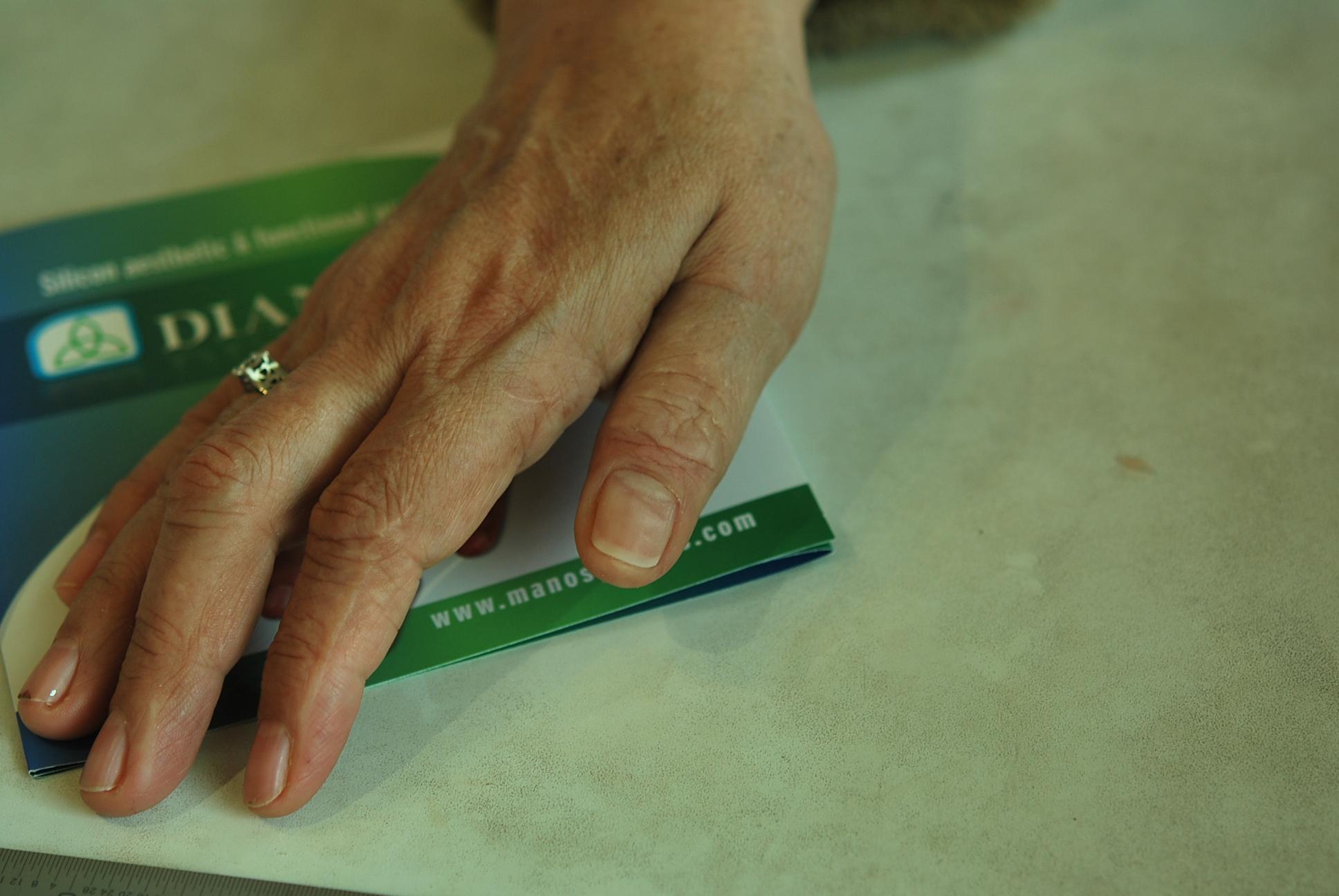 Prótesis para dedo